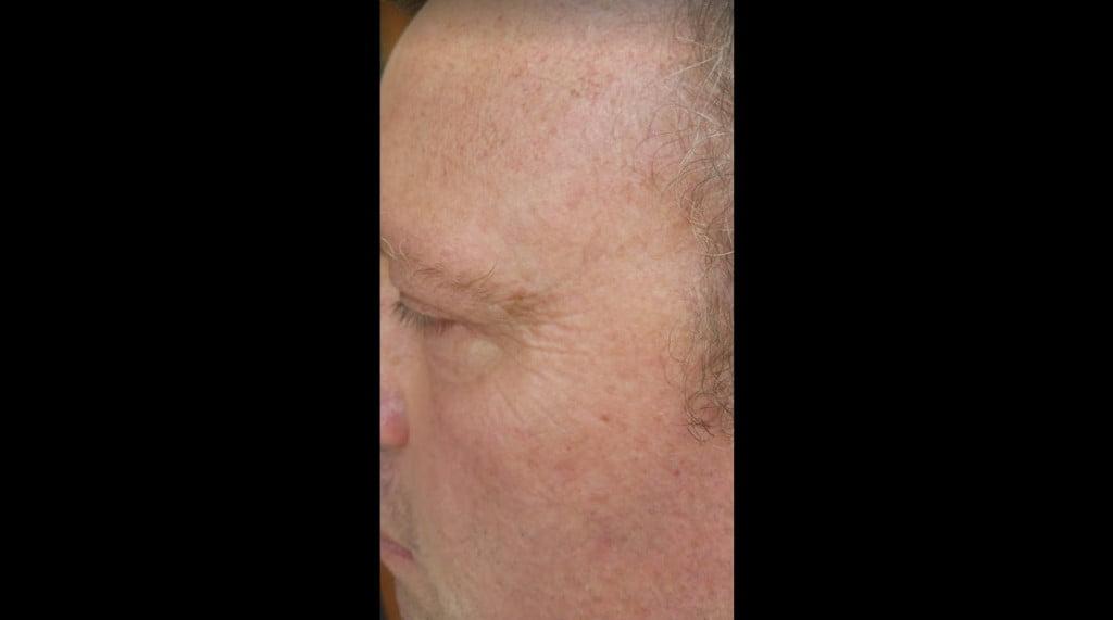 Trevor After Sisel Skin Care - Anti Aging - Tom Mower