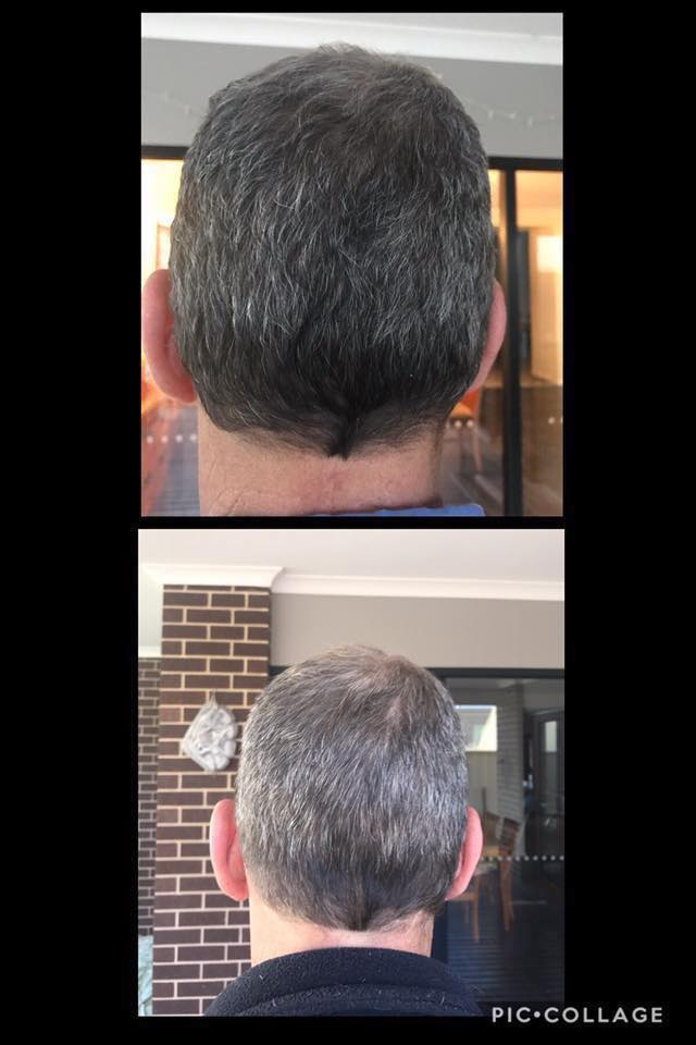 Age Pill Review Grey hair reduced significantly