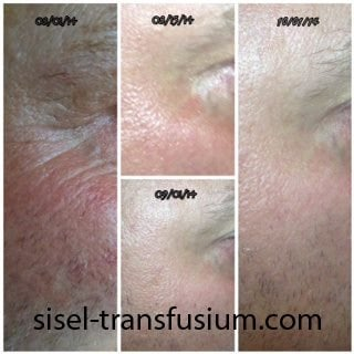 Before and After Anti Aging Cream - Transfusium - Sisel International