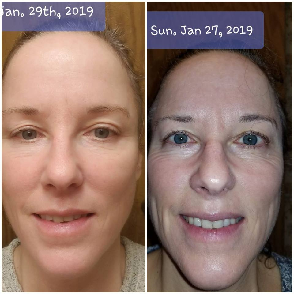 H2 Stix Testimonial Before and After Photo of Skin