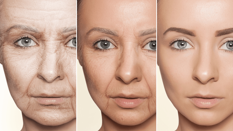How to beat the signs of aging
