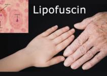 Lipofuscin Age Pill