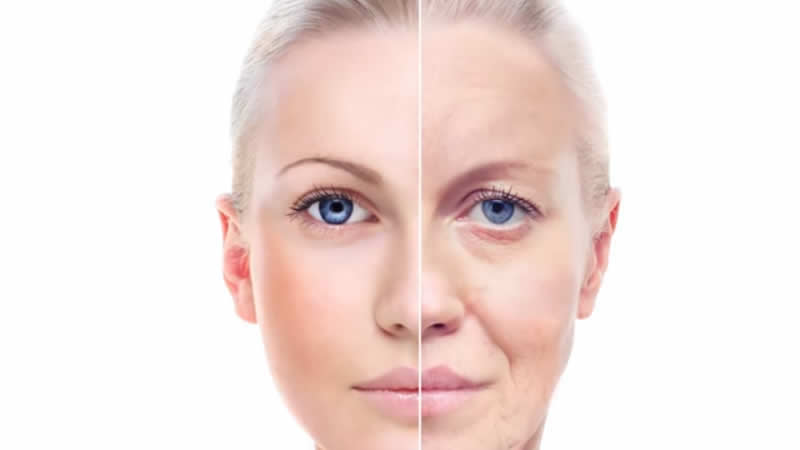 Photo AGING Protection - Avoid excess UV exposure is critical in preventing premature aging of the skin. Find out why and what you can do.