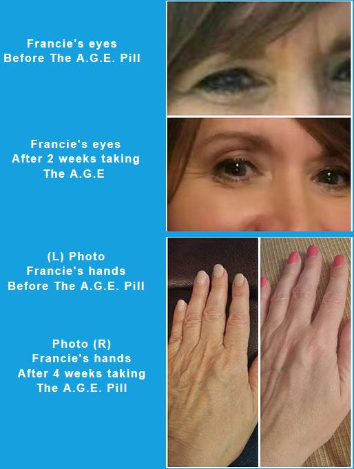 AGE Pill testimonial before and after with of Hands
