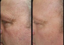 Before and After Sisel's Timeless Renewal Skin Care System