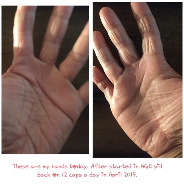 Before and After with AGE Pill Dermatitis
