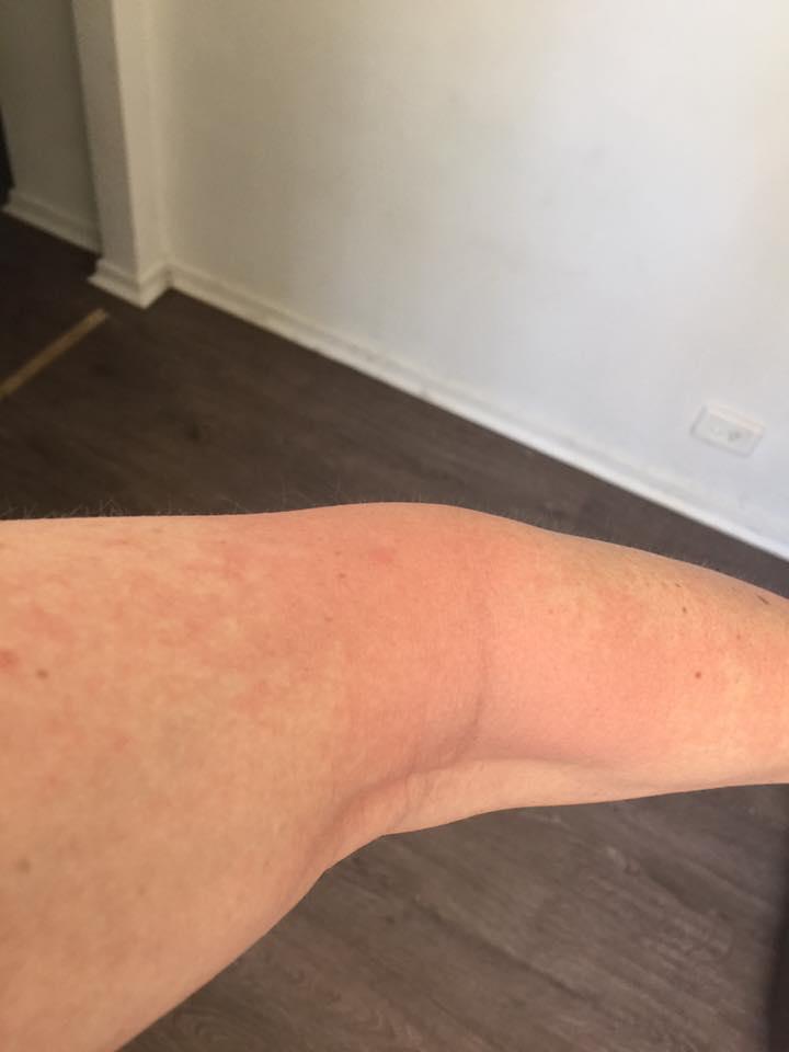 how to get rid of niacin rash