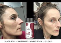 Skin and Hair